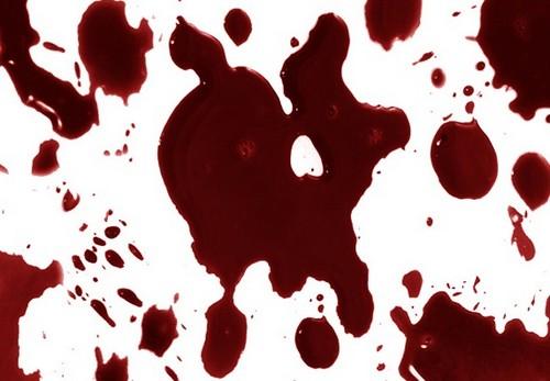 темная кровь во время месячных фото