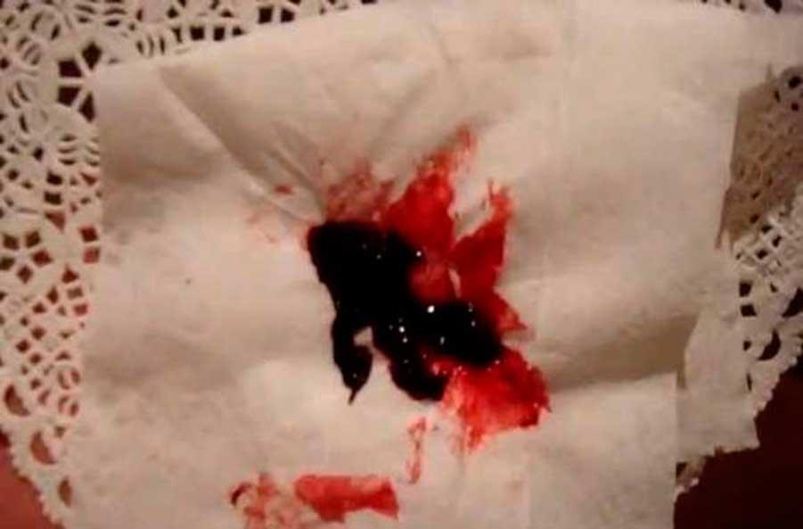 фото месячные со сгустками крови