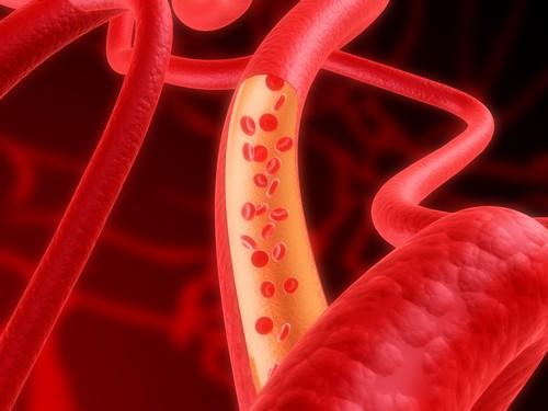 артерия