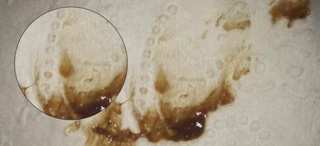 коричневая слизь на салфетке